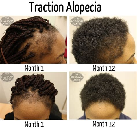 best hairstyles dor traction alopecia beyonc 233 debuts new hairstyle but at what cost to her hair