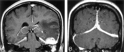 idiopathic hypertrophic cranial pachymeningitis case