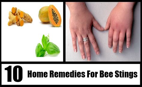 10 simple home remedies for bee stings
