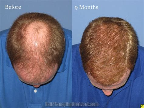 best hair implants hair restoration surgery before and after images with 4400