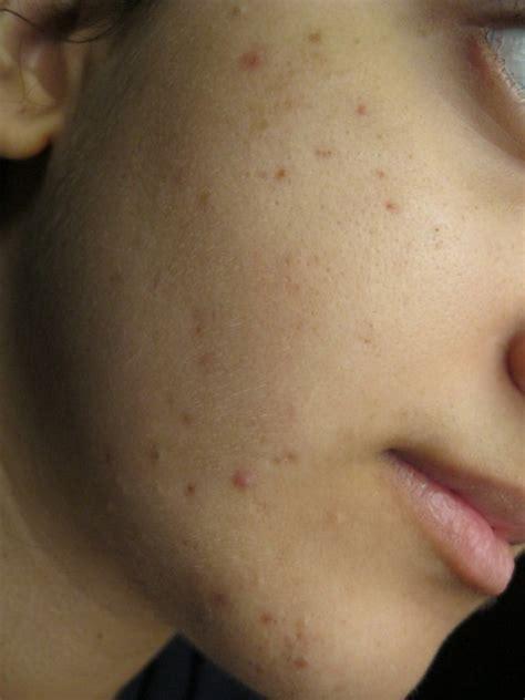 cara mudah menghilangkan bintik flek hitam di wajah secara cara menghilangkan flek hitam pada wajah secara alami