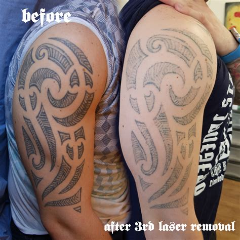 dark tattoo removal and permanent make up removal with laser