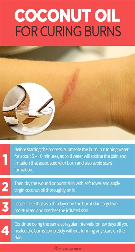17 best ideas about treatment for burns on