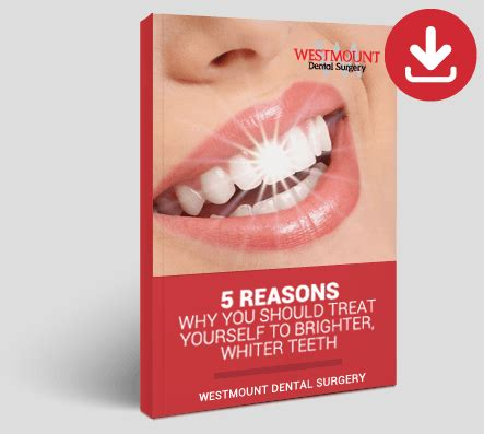 enlighten teeth whitening  sunderland westmount dental