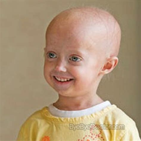 progeria pictures symptoms causes treatment diagnosis