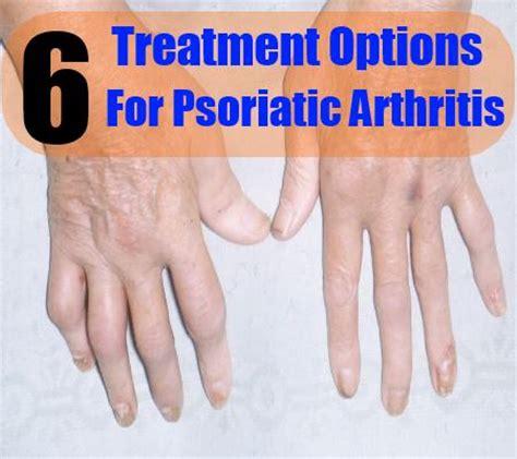 Detox For Arthritis Relief by Psoriatic Arthritis Treatment
