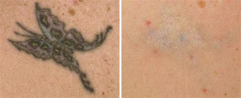 q switch laser tattoo removal before and after qx max fotona