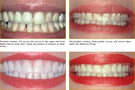 porcelain veneers chester county family dentistry