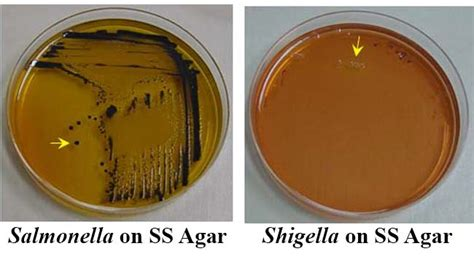 Salmonella Stool Color by Salmonella Shigella Ss Agar Composition Principle Uses Preparation And Result Interpretation