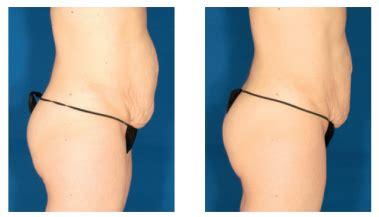 Dr Skin Care Dsc Paket Acne laser treatments dsc laser skin care center san
