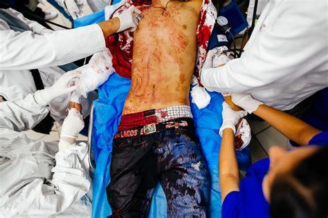 cooper hospital emergency room emergency department san salvador el salvador