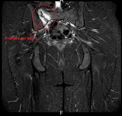 dolori al coccige da seduto dolore all osso sacro cause e terapia