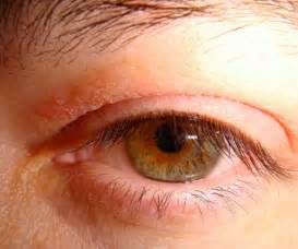 itchy eyelids home remedy itchy eyelids swollen allergies yeast
