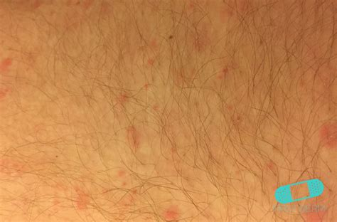 the cause that responsible for barbers folliculitis may be either a online dermatology folliculitis barber s itch