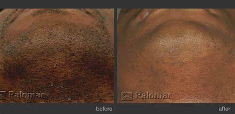 palomar laser for hair removal laser treatments l arte della bellezza