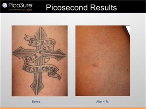 tattoo laser removal norwalk ct all about tattoo