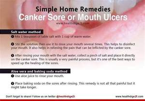 Home Remedy For Canker Sore by Do You Canker Sores Cures