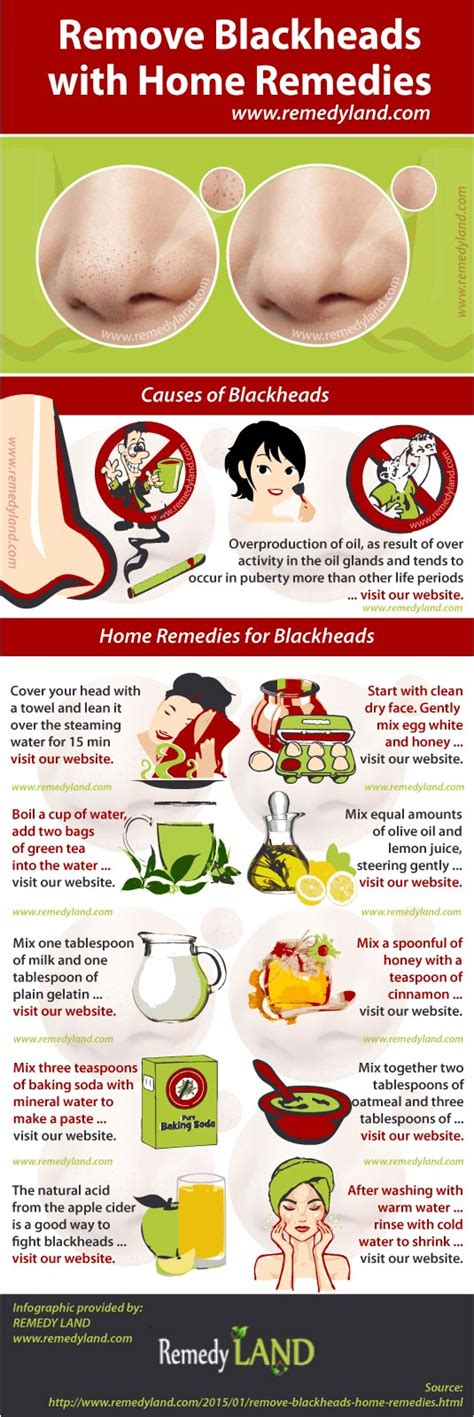 how to get rid of blackheads remedies