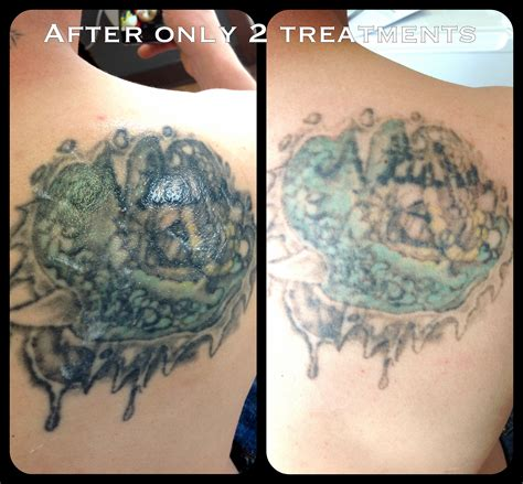laser tattoo removal center portland cascadelaserblog