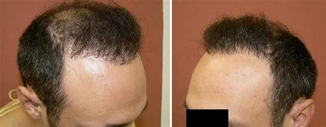 hair loss hair transplant and hair restoration advice when hair transplants go wrong hair loss experiences