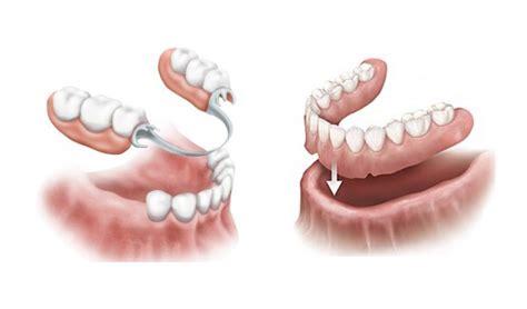 protesi fissa e mobile protesi dentale centro polimed protesi fissa e mobile