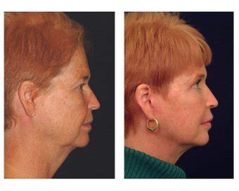 lower face and neck lift lower face neck lift photo from michael law md raleigh