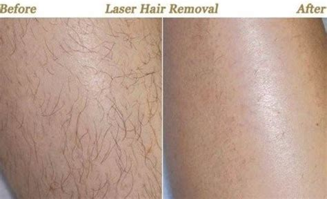 como elegir depiladora laser casera depiladora laser casera 191 c 243 mo escoger tendenzias com