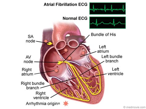 atrial fibrillation diagram diagram electrical image collections how to guide