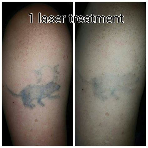 tattoo removal cheltenham forever clinic cheltenham city center cheltenham 7