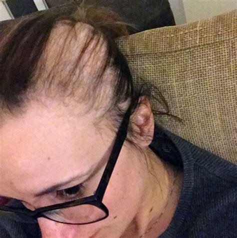 bald patches on head in older women student went completely bald in just weeks due to exam