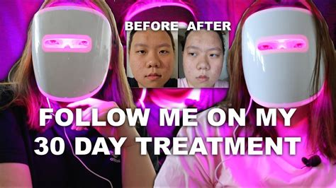 does the neutrogena light mask work does it work neutrogena light therapy acne mask