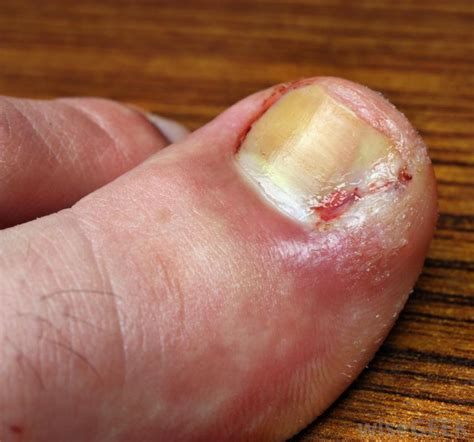 bruised nail bed melanoma under toenail big toe