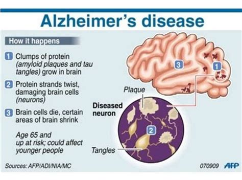 thirty essential tips to start managing the alzheimer s or other dementia your parent and yourself an elder care survival guide books stem cell research shows promising results for alzheimer s