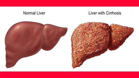 liver disease diet cirrhosis of the liver treatment liver cirrhosis remedies liver