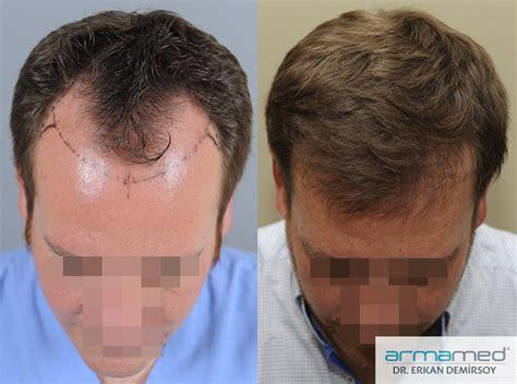 dr kieley hair restoration hair transplant armamed fue hair transplantation