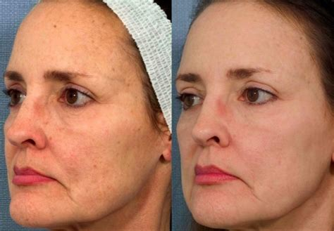 limelight photofacial before and after photos