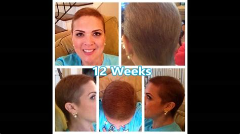 hairstyle for when hair grows back after chemo hair regrowth after chemo youtube