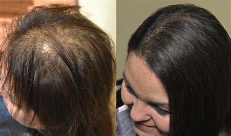 hair weaves for thinning hair hair extensions for thinning scalp om hair