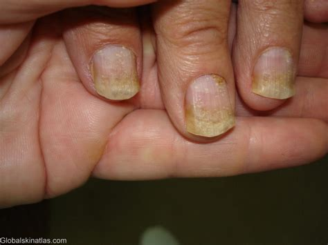 nail separated from nail bed nail separated from nail bed 28 images fingernails and