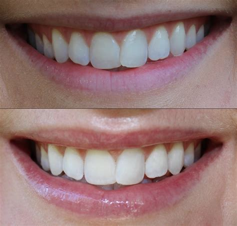 best at home teeth whitening system altogether beautiful