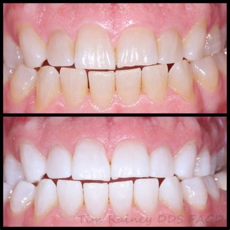 teeth whitening tooth bleaching victoria tx zoom