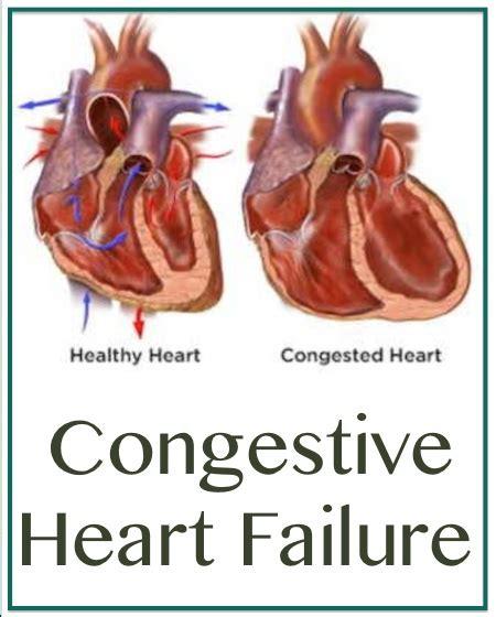 congestive failure stages congestive failure prognosis stages k k club 2017