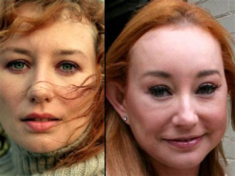 plastic surgery gone wrong tori amos plastic surgery before and after nose job and botox