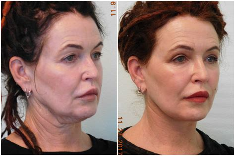 lower face and neck lift neck lift las vegas lower facelift henderson