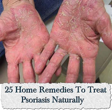 25 home remedies to treat psoriasis naturally