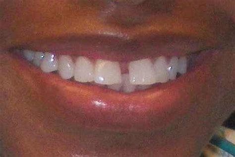 dental treatment     buxton maine