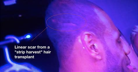 dr bauman offers no linear scar hair transplants with celebrity hair loss game 6 photos show lebron james had a