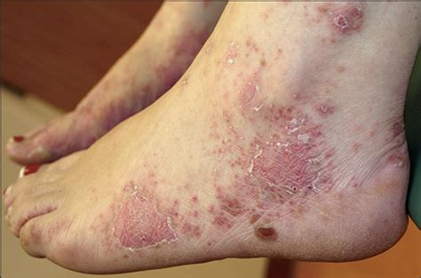 pustules pestilence and tudor treatments and ailments of henry viii books psoriatic skin lesions induced by certolizumab pegol