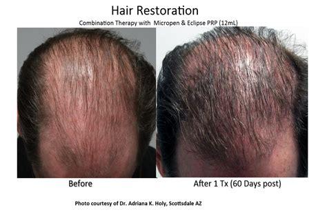 hair loss hair transplant and hair restoration advice prp hair restoration ei con health wellness center