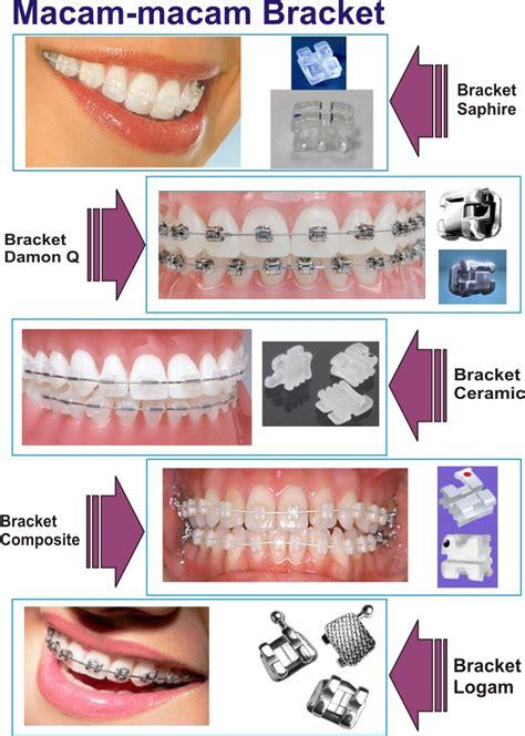 Biaya Membersihkan Karang Gigi Di Klinik Nadira memasang kawat gigi pasang kawat gigi yogyakarta pasang kawat gigi murah di jogja biaya
